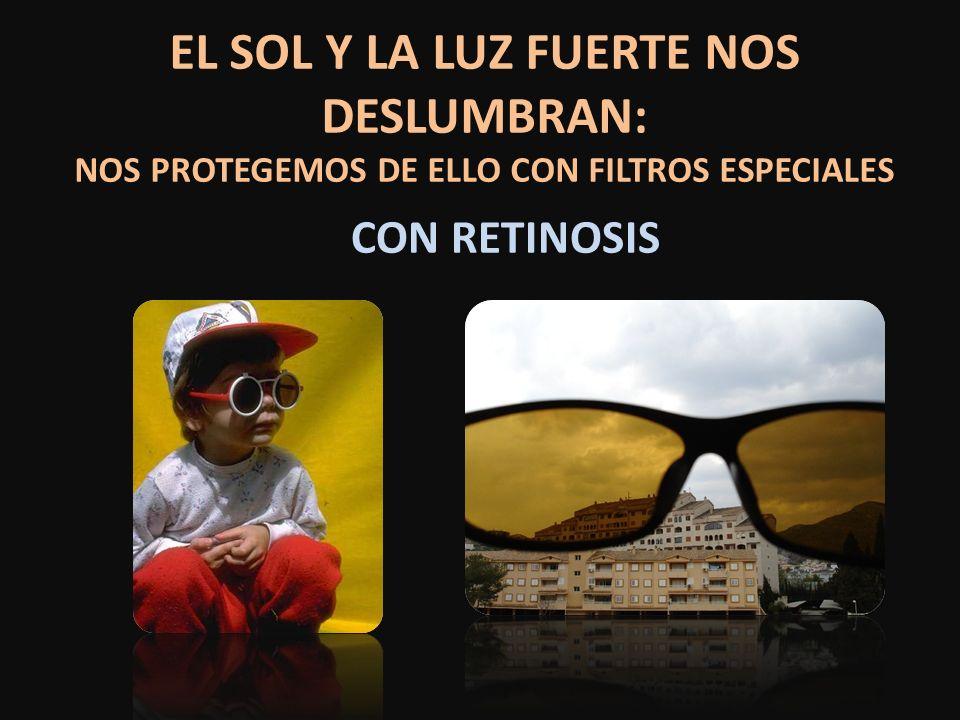 EL SOL Y LA LUZ FUERTE NOS DESLUMBRAN: NOS PROTEGEMOS DE ELLO CON FILTROS ESPECIALES