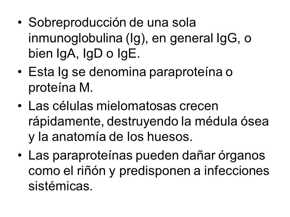 Sobreproducción de una sola inmunoglobulina (Ig), en general IgG, o bien IgA, IgD o IgE.