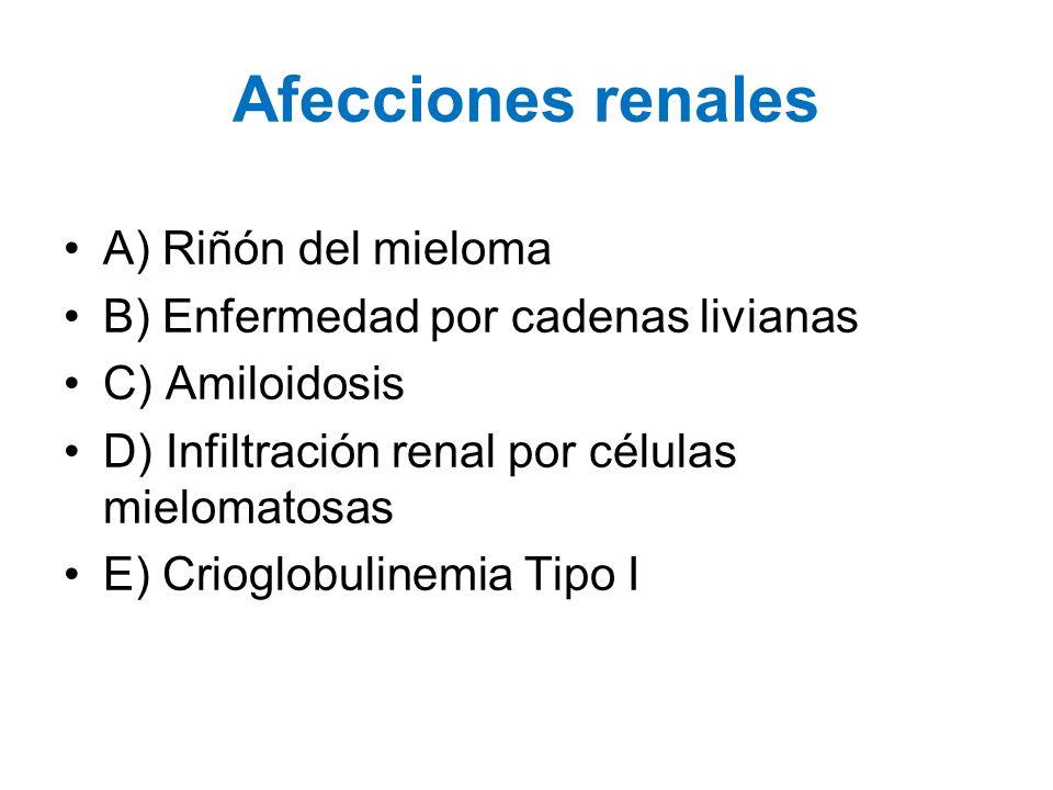 Afecciones renales A) Riñón del mieloma