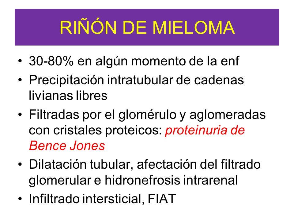 RIÑÓN DE MIELOMA 30-80% en algún momento de la enf