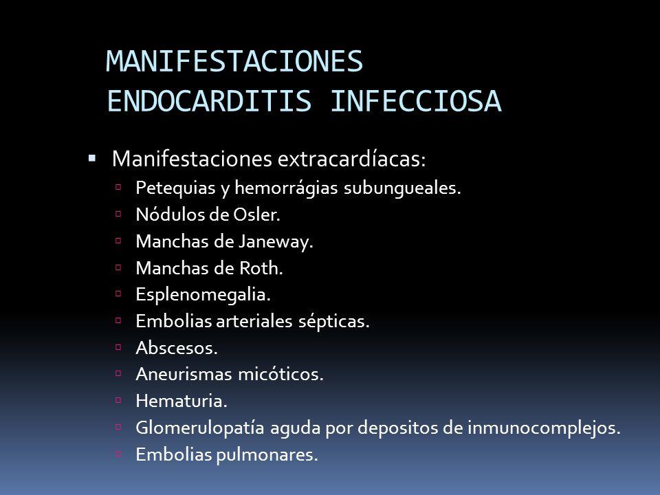 MANIFESTACIONES ENDOCARDITIS INFECCIOSA