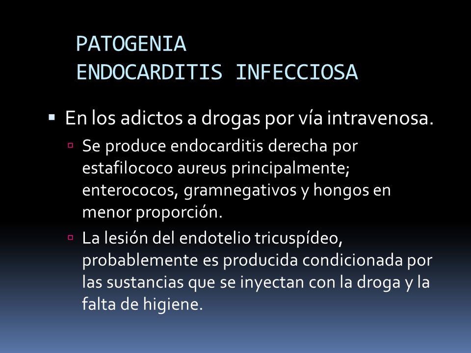 PATOGENIA ENDOCARDITIS INFECCIOSA