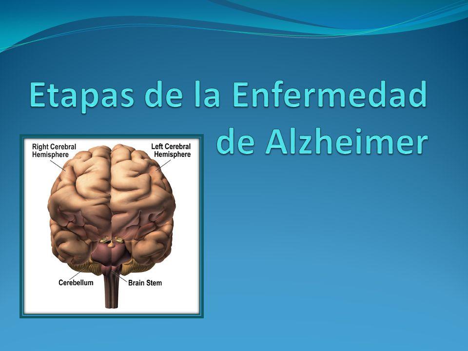 Etapas de la Enfermedad de Alzheimer