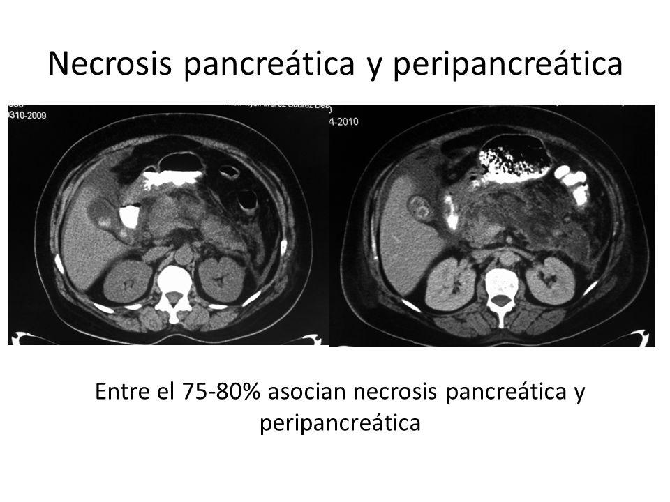 Necrosis pancreática y peripancreática