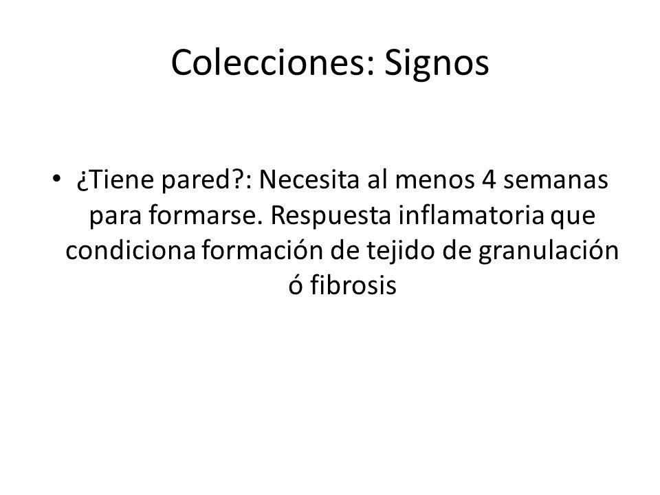 Colecciones: Signos