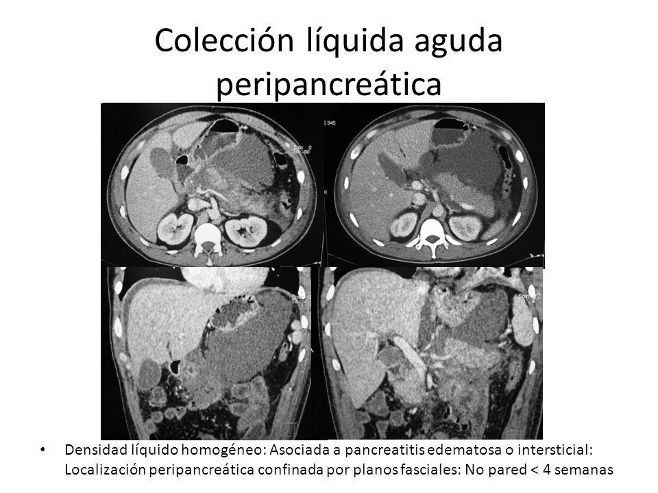Colección líquida aguda peripancreática