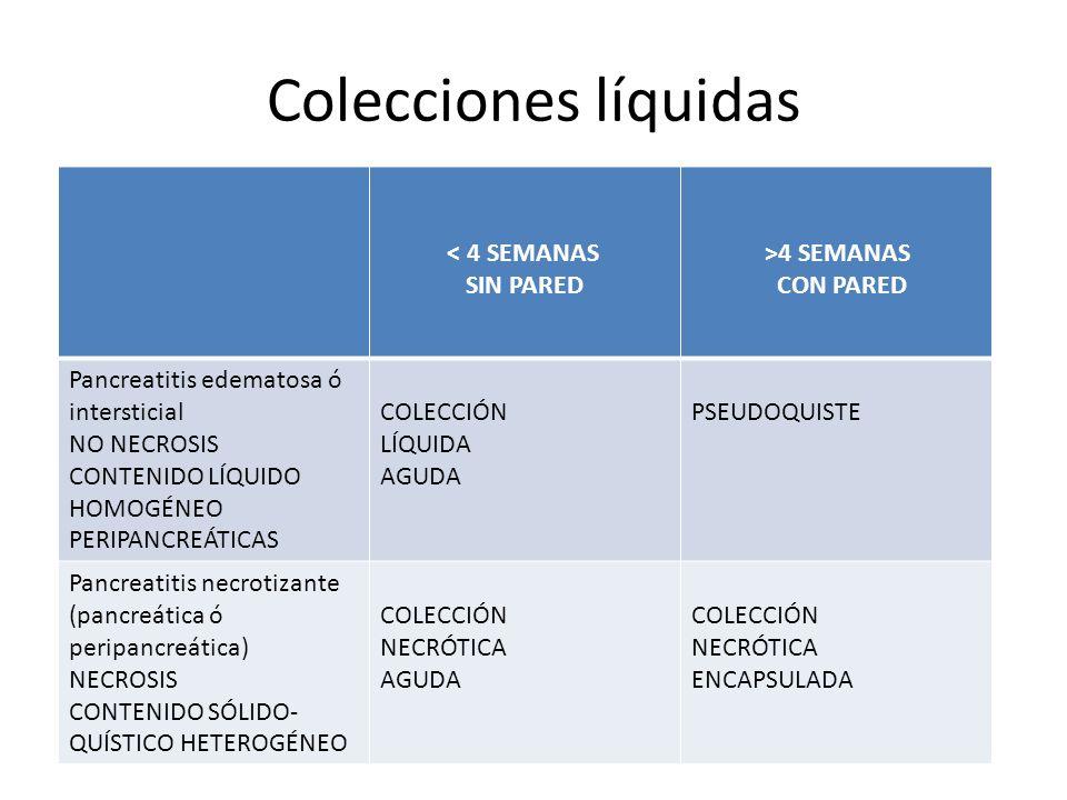 Colecciones líquidas < 4 SEMANAS SIN PARED >4 SEMANAS CON PARED