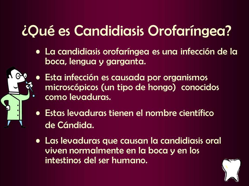 ¿Qué es Candidiasis Orofaríngea