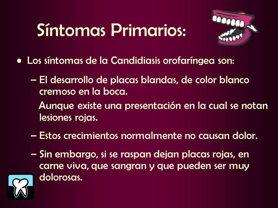 Síntomas Primarios: Los síntomas de la Candidiasis orofaríngea son:
