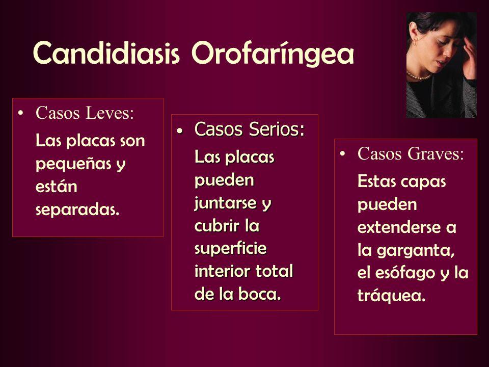 Candidiasis Orofaríngea