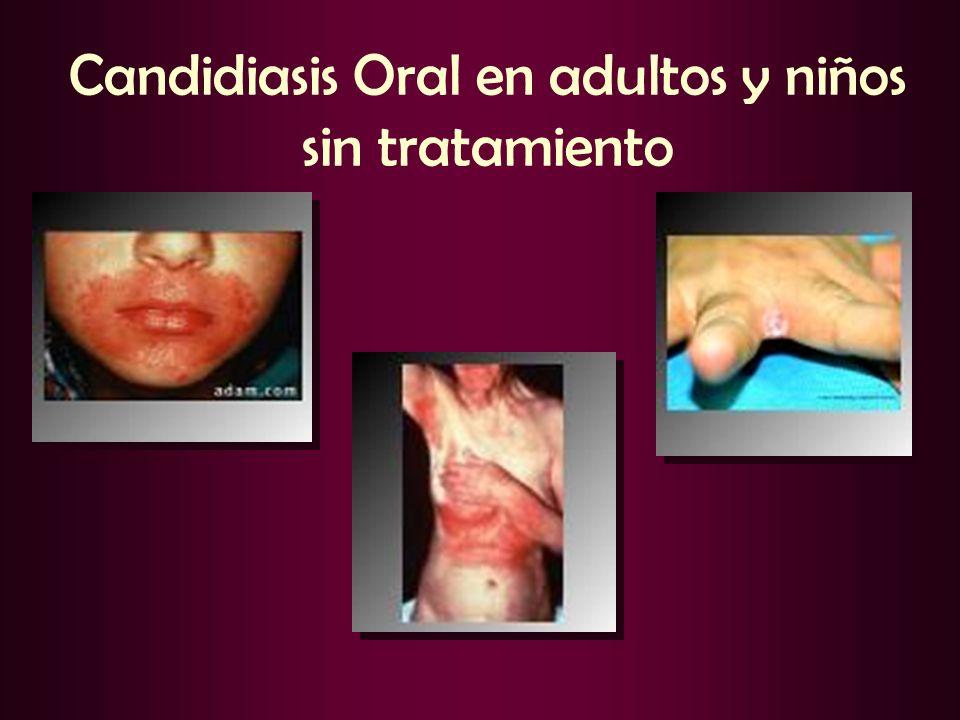 Candidiasis Oral en adultos y niños sin tratamiento