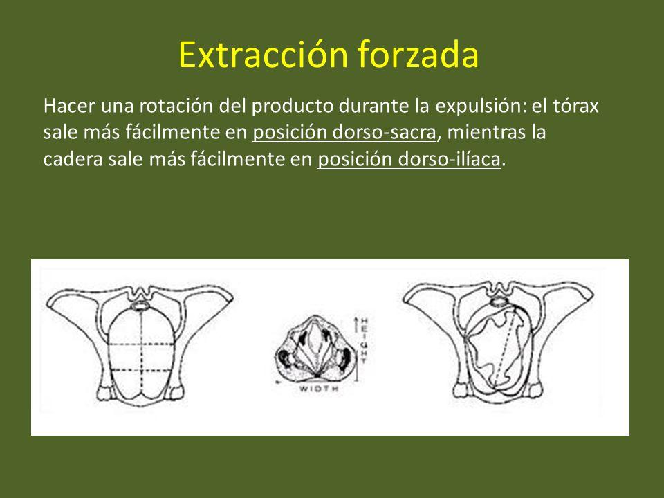 Extracción forzada