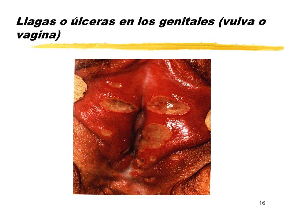 Llagas o úlceras en los genitales (vulva o vagina)
