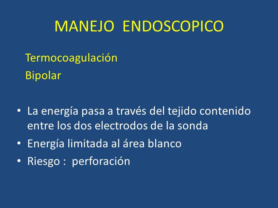 MANEJO ENDOSCOPICO Termocoagulación Bipolar