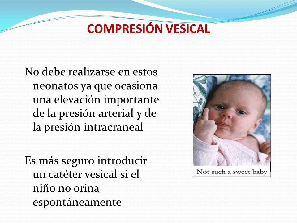 Compresión vesical: COMPRESIÓN VESICAL