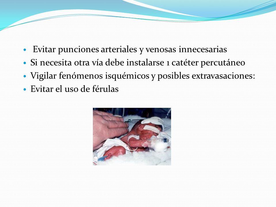 Evitar punciones arteriales y venosas innecesarias