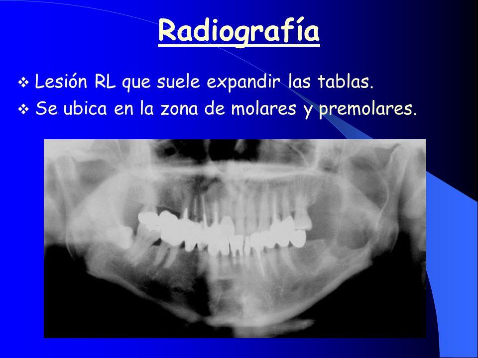 Radiografía Lesión RL que suele expandir las tablas.