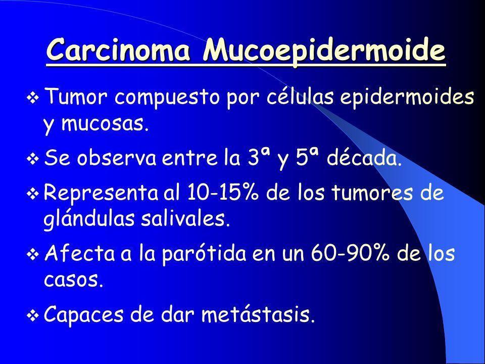 Carcinoma Mucoepidermoide