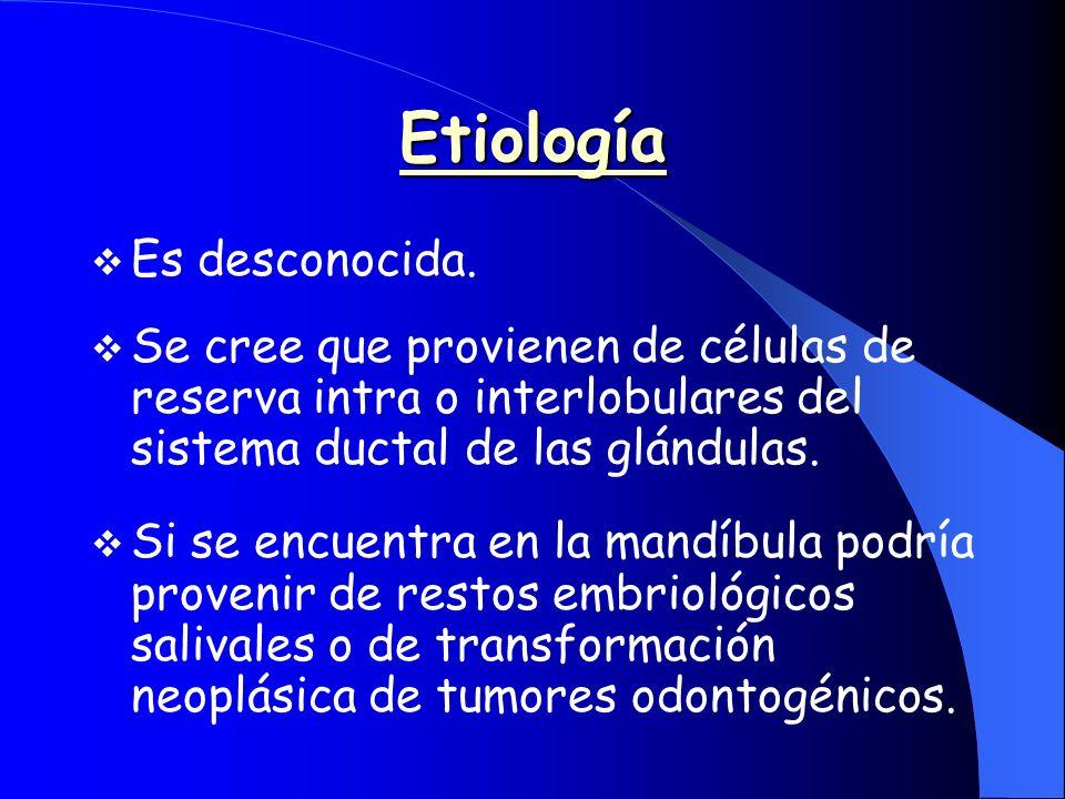 Etiología Es desconocida.