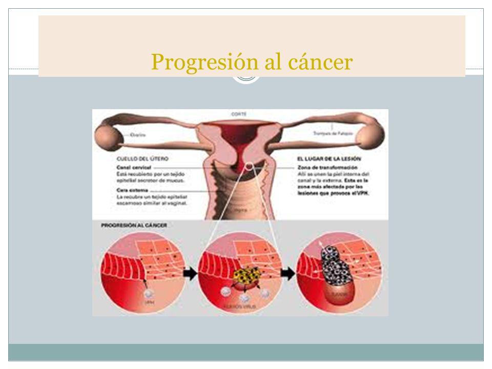 Progresión al cáncer
