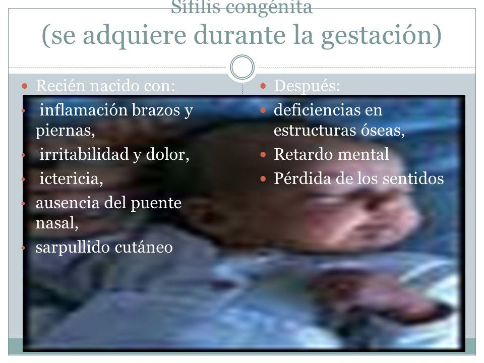 Sífilis congénita (se adquiere durante la gestación)