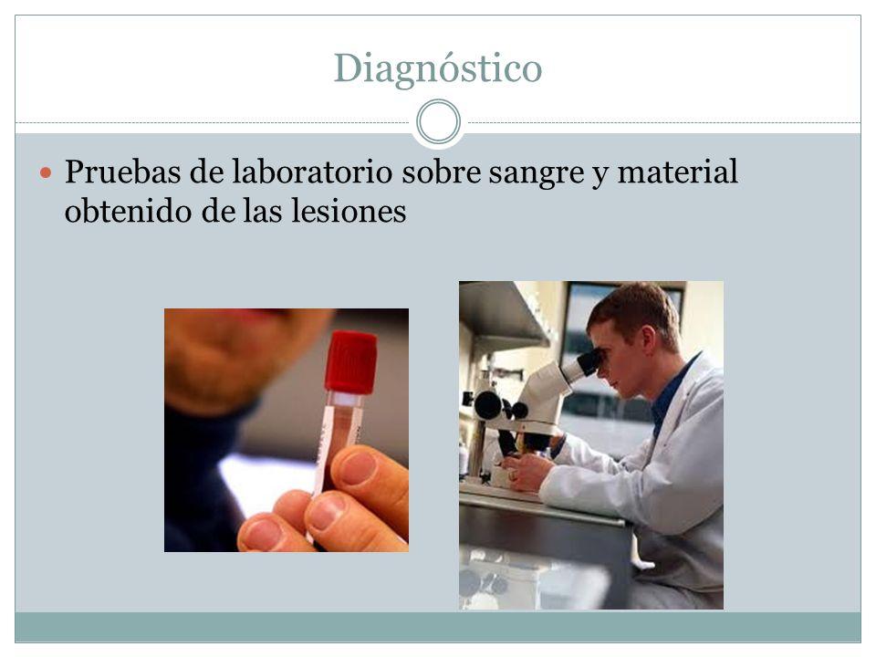 Diagnóstico Pruebas de laboratorio sobre sangre y material obtenido de las lesiones