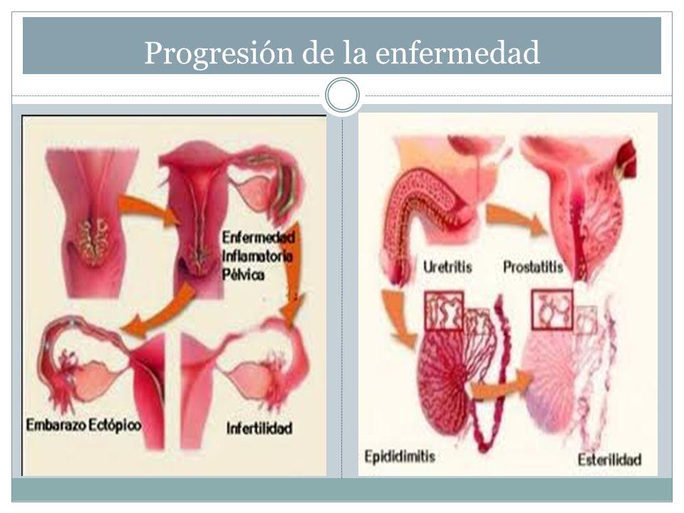 Progresión de la enfermedad