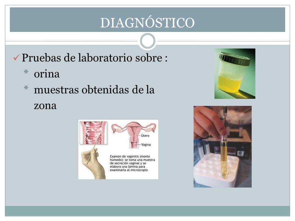 DIAGNÓSTICO Pruebas de laboratorio sobre : * orina