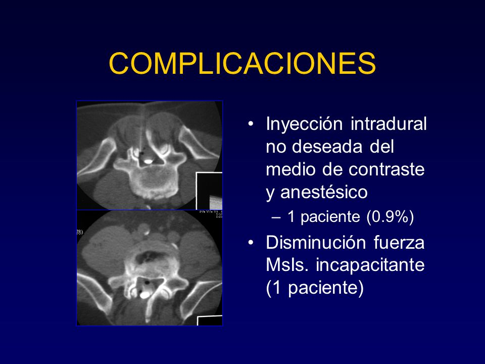 COMPLICACIONES Inyección intradural no deseada del medio de contraste y anestésico. 1 paciente (0.9%)