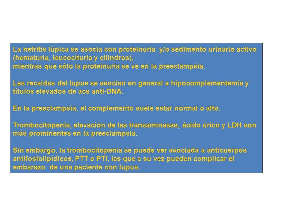 La nefritis lúpica se asocia con proteinuria y/o sedimento urinario activo