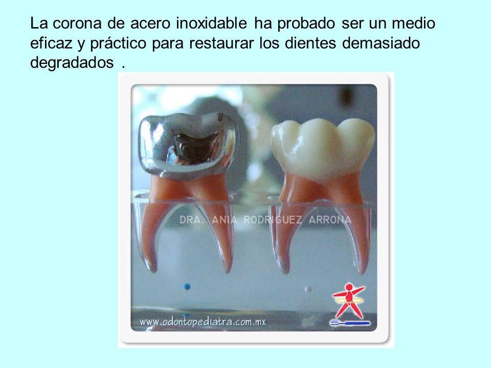 La corona de acero inoxidable ha probado ser un medio eficaz y práctico para restaurar los dientes demasiado degradados .