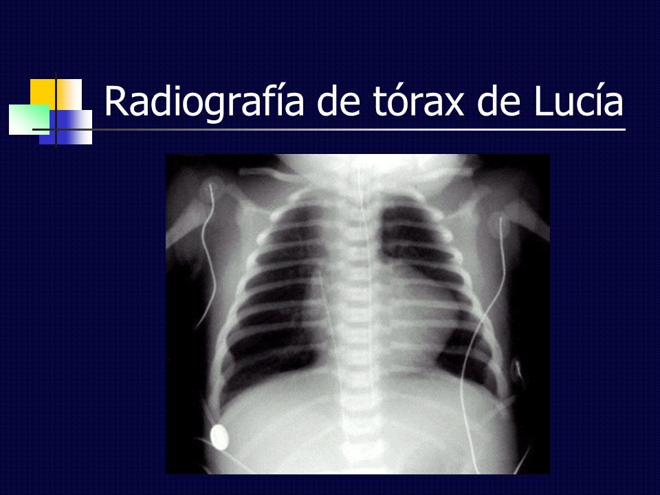 Radiografía de tórax de Lucía