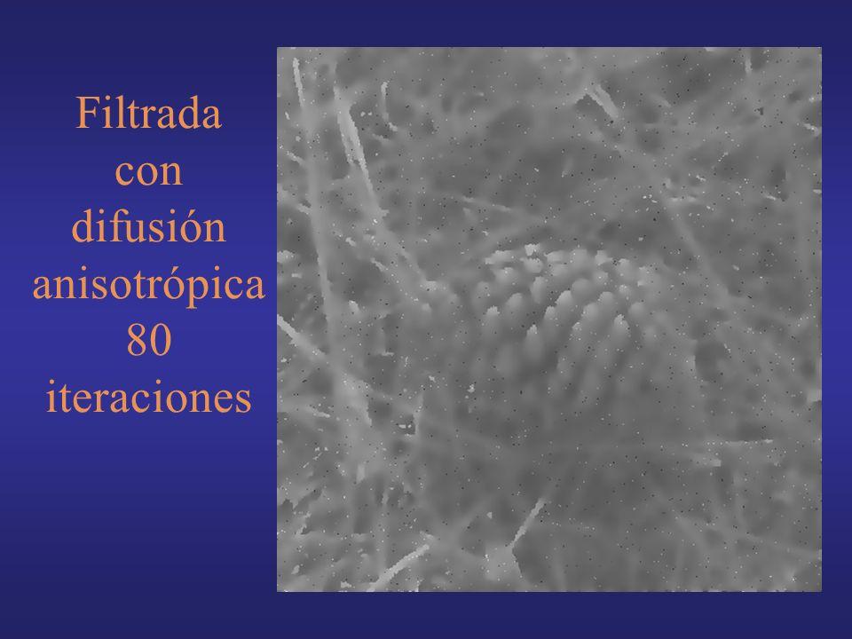 Filtrada con difusión anisotrópica 80 iteraciones