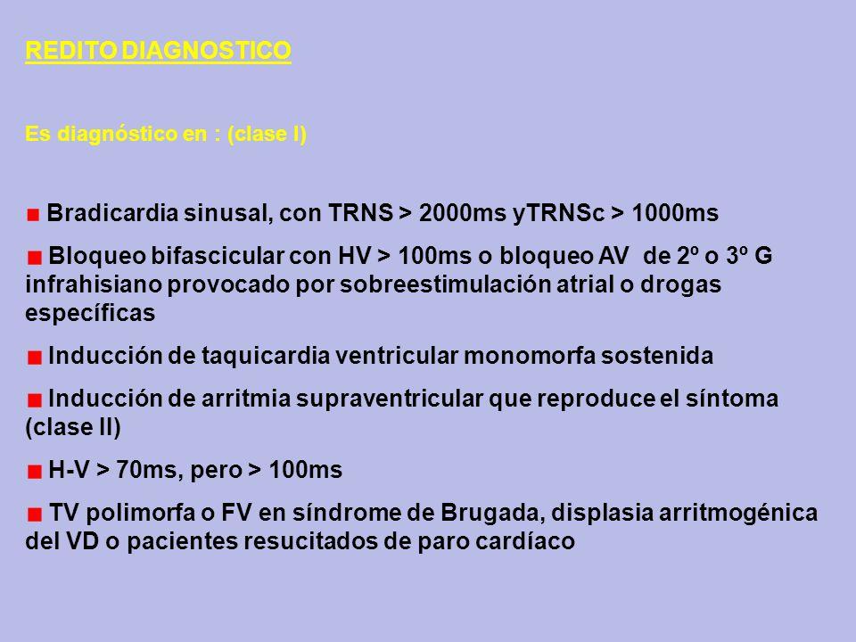 Inducción de taquicardia ventricular monomorfa sostenida
