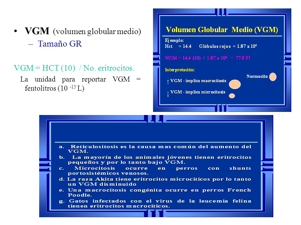 VGM (volumen globular medio)