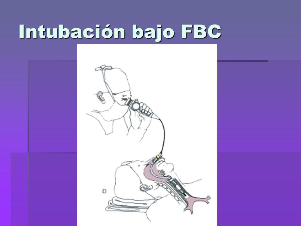 Intubación bajo FBC