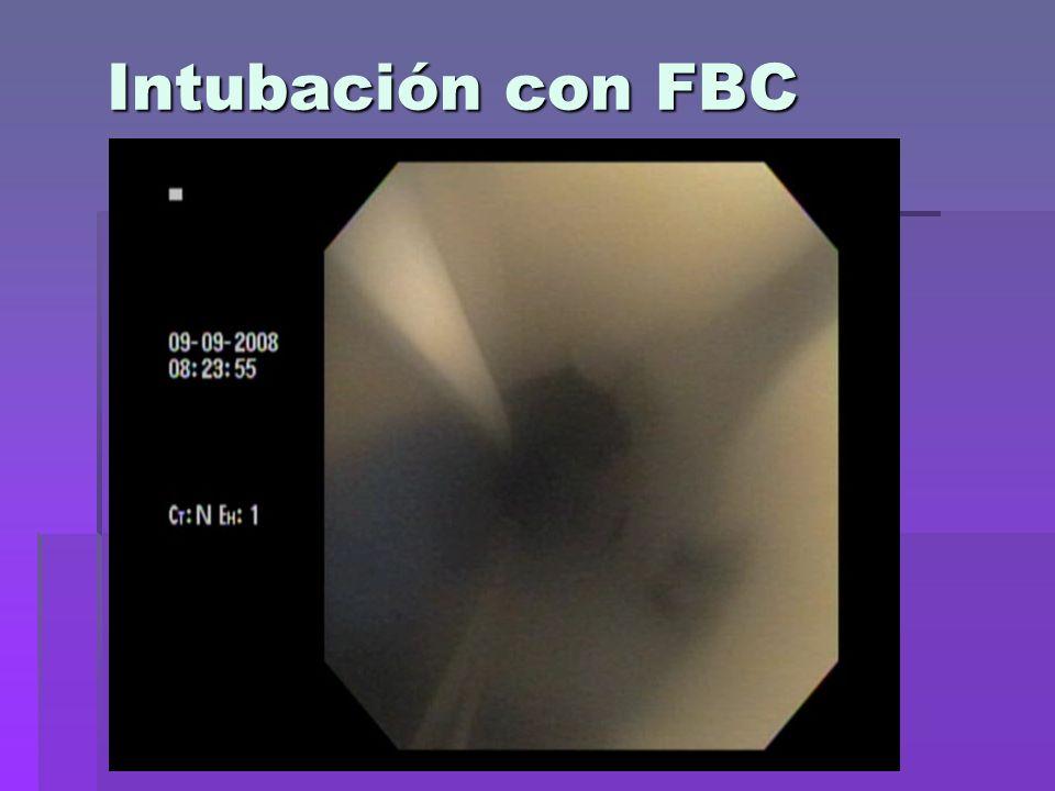 Intubación con FBC
