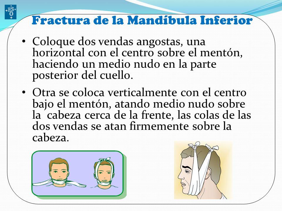 Fractura de la Mandíbula Inferior