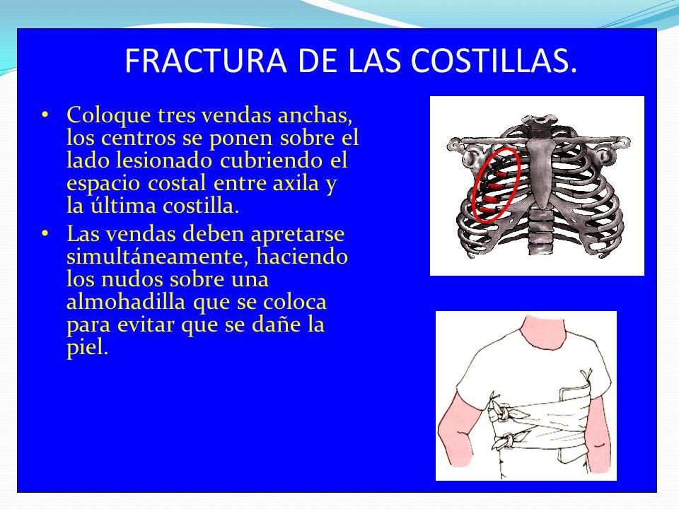 FRACTURA DE LAS COSTILLAS.