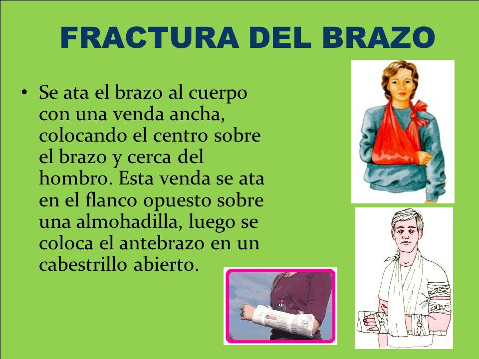 FRACTURA DEL BRAZO