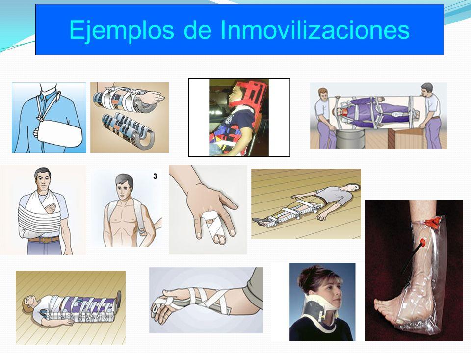 Ejemplos de Inmovilizaciones