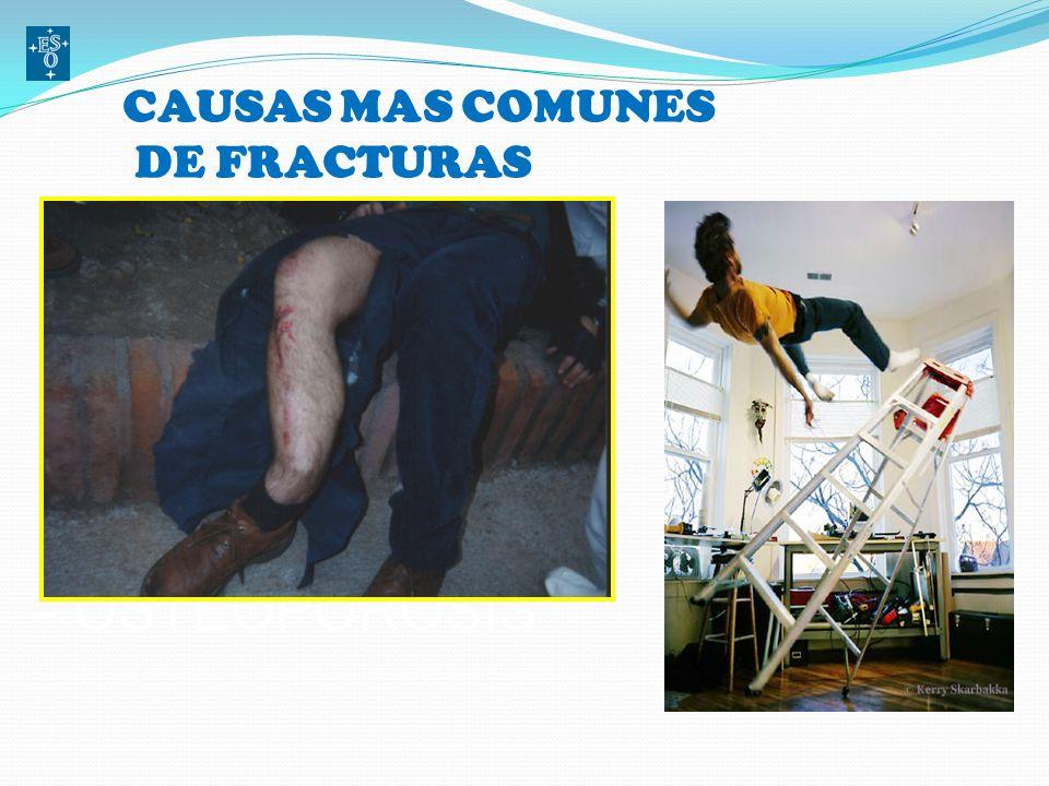 CAUSAS MAS COMUNES DE FRACTURAS