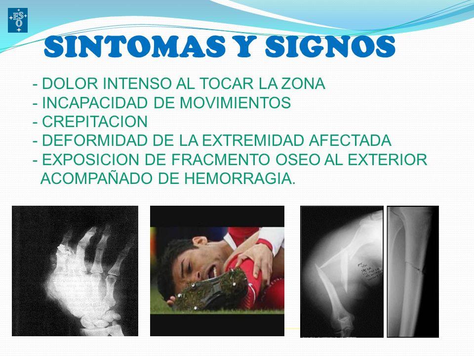 SINTOMAS Y SIGNOS - DOLOR INTENSO AL TOCAR LA ZONA