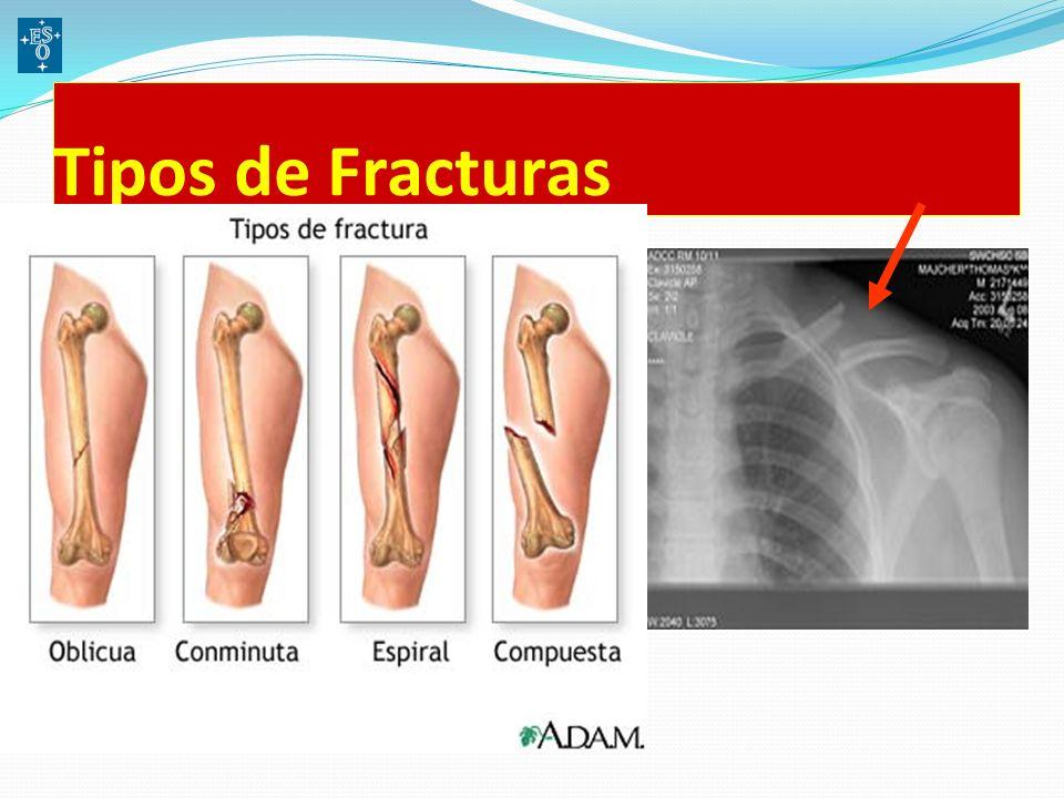 Tipos de Fracturas
