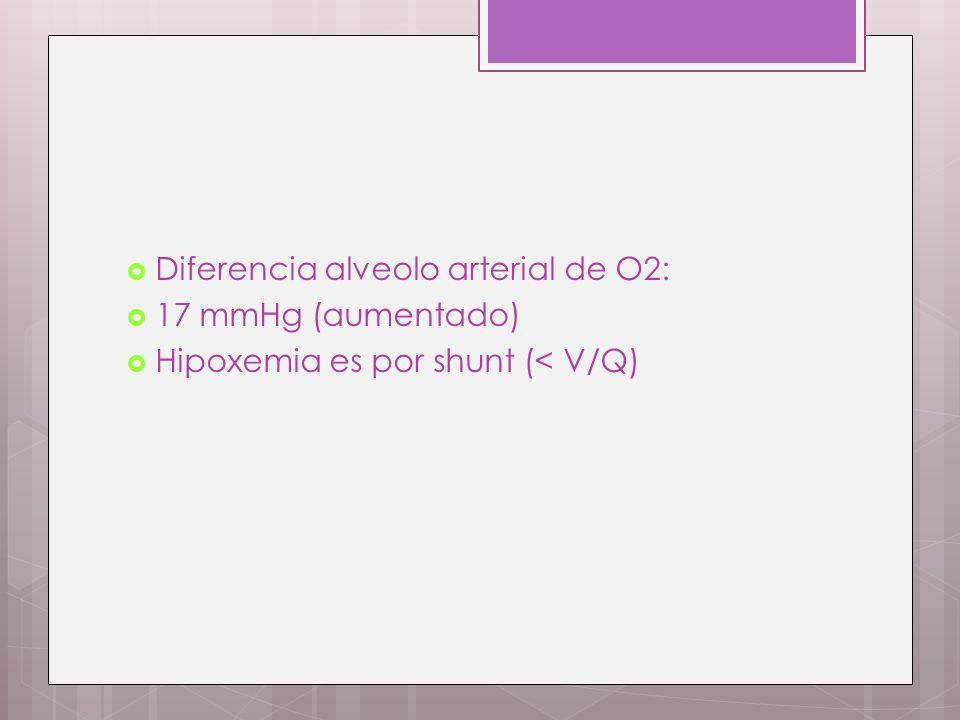 Diferencia alveolo arterial de O2: