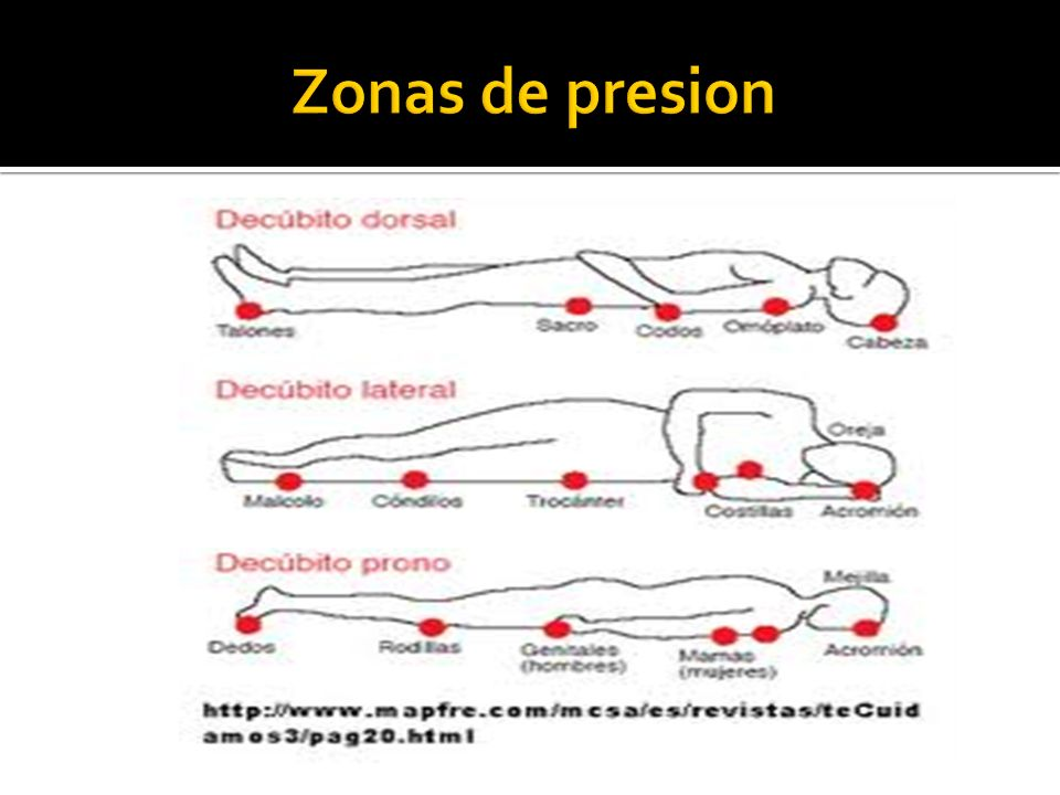 Zonas de presion
