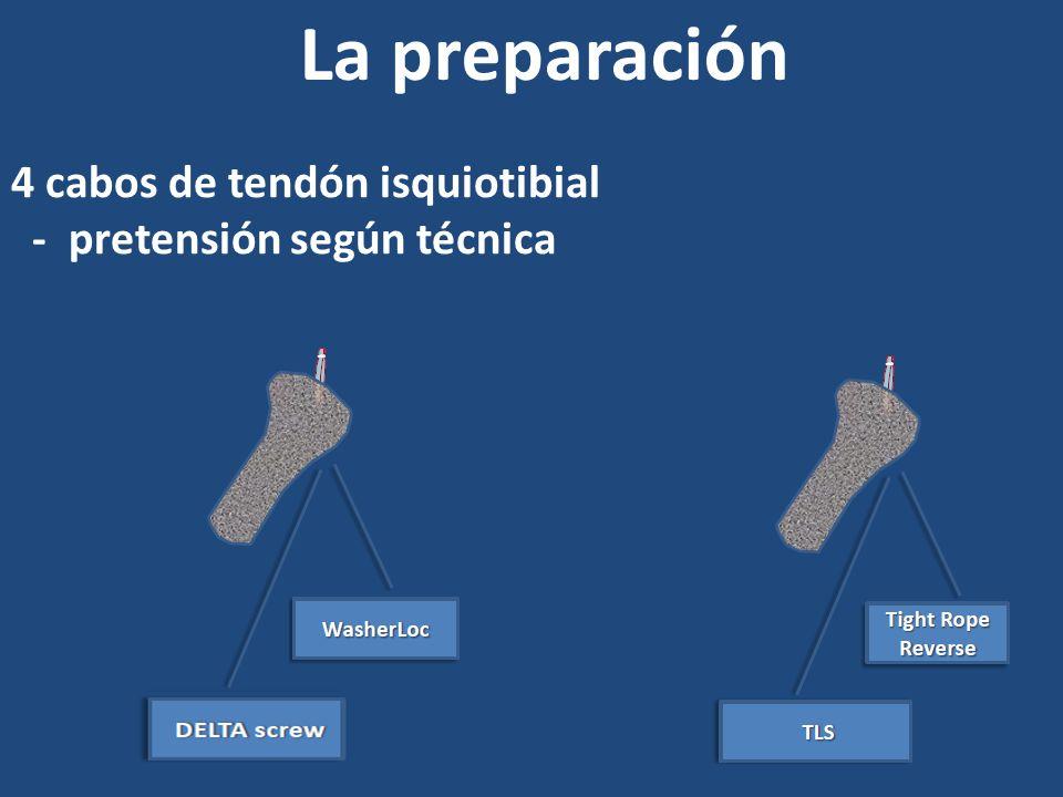 La preparación 4 cabos de tendón isquiotibial
