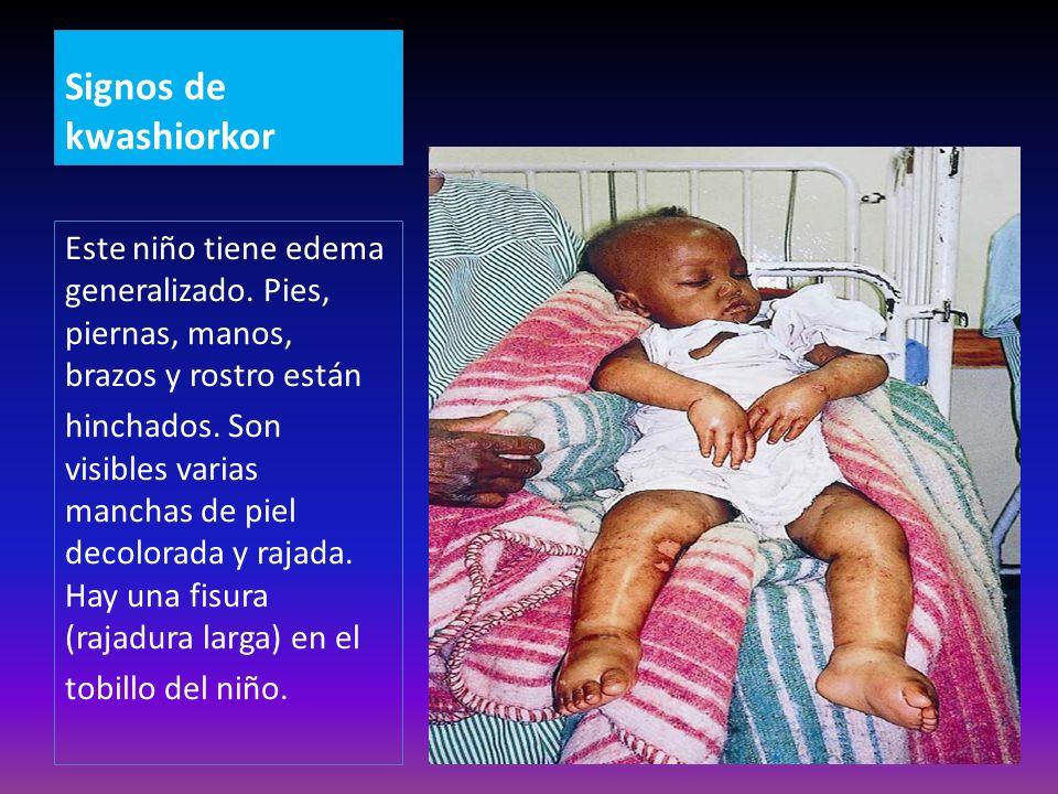 Signos de kwashiorkor Este niño tiene edema generalizado. Pies, piernas, manos, brazos y rostro están.