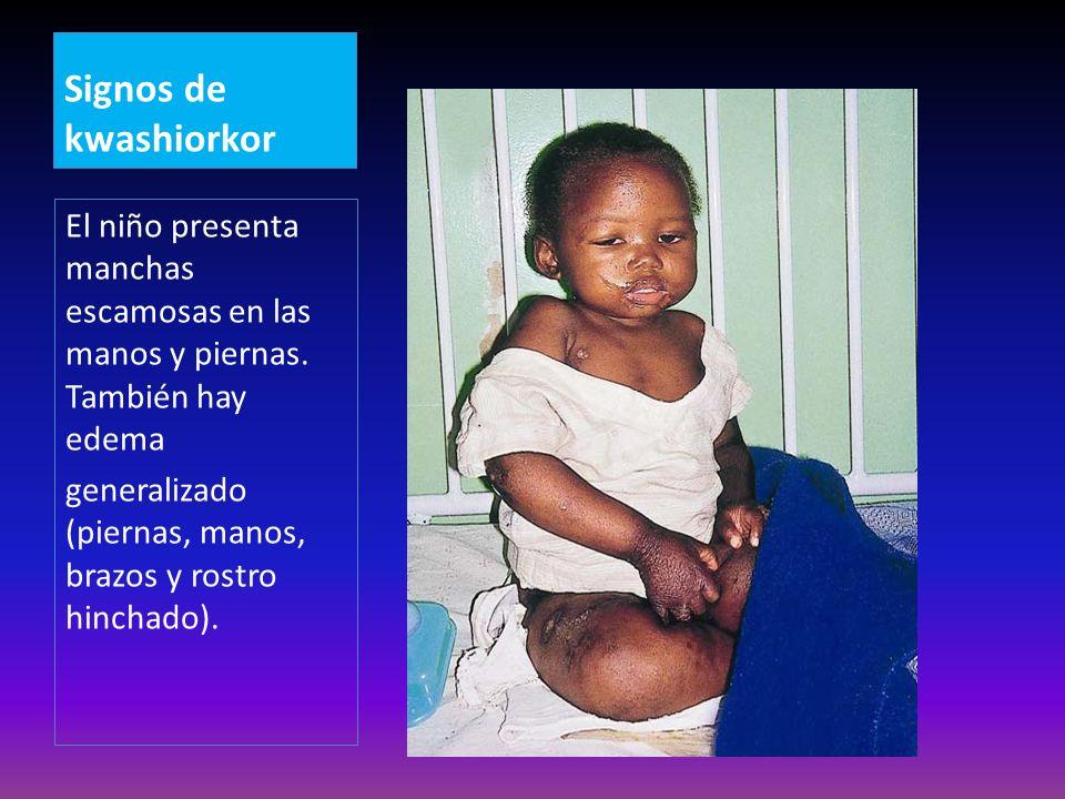 Signos de kwashiorkor El niño presenta manchas escamosas en las manos y piernas. También hay edema.
