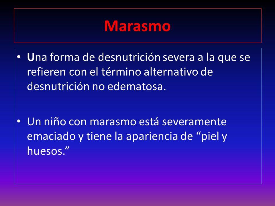 Marasmo Una forma de desnutrición severa a la que se refieren con el término alternativo de desnutrición no edematosa.